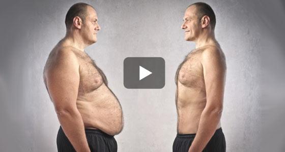 Avec la sleeve : une perte de poids d'environ 30 kilos