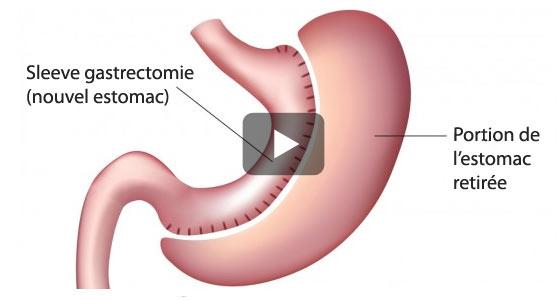 La sleeve : retrait de plus de 60% de l'estomac. On vous explique tout en vidéo.